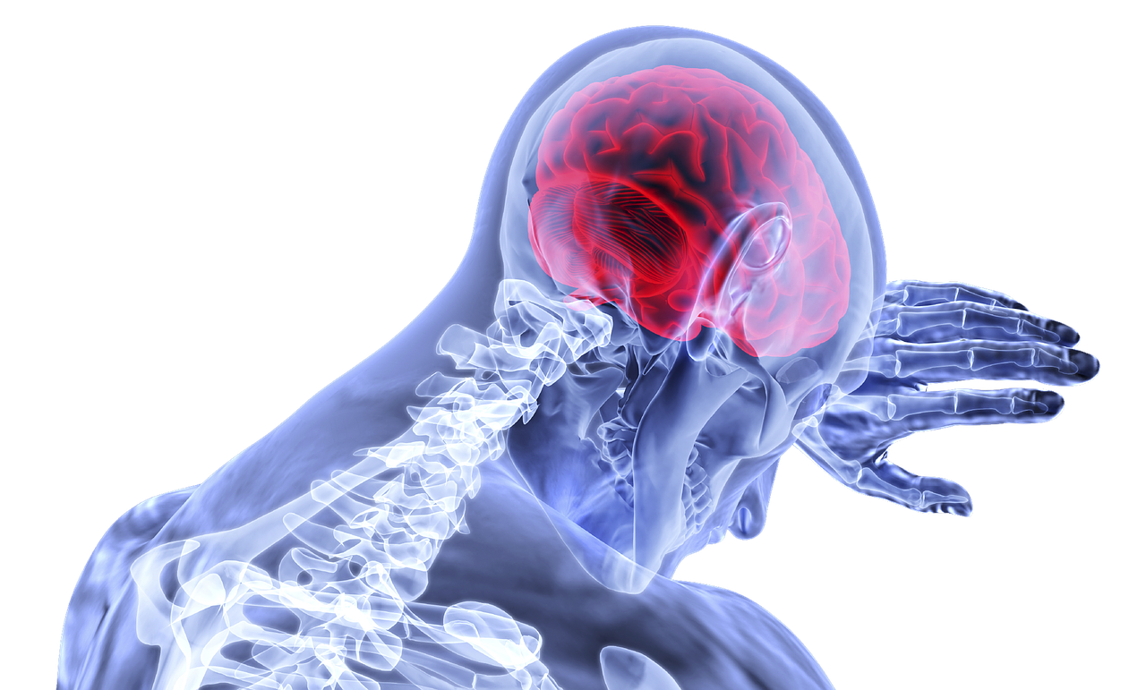 Image shows a skeleton with the brain highlighted in red symbolising a stroke