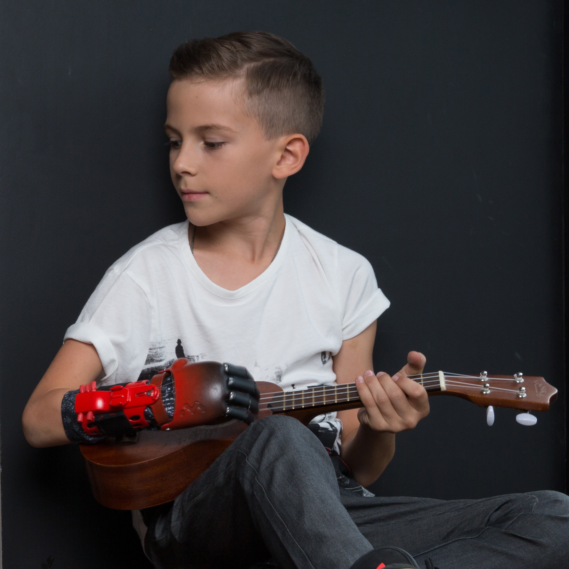 Photo of a boy playing the guitar with a Motorica prosthetic hand